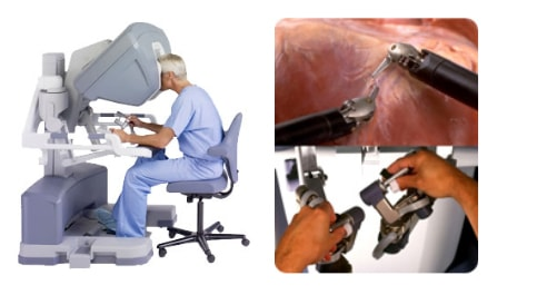 New York & New Jersey da Vinci Surgical System for Sleep Disorders